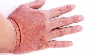 vtct level 2 preventing contact dermatitis Hayden health & beauty training academy site navigation home  vtct level 2 award in emergency first aid at work  preventing contact dermatitis level 2 home.